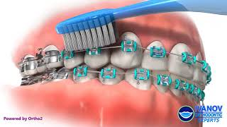 Proper Brushing Technique with Braces