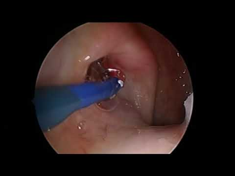 New video! Balloon Eustachian tuboplasty.