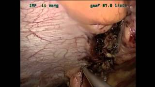 Pure Transvaginal Laparoscopic Umbilical Hernia Repair