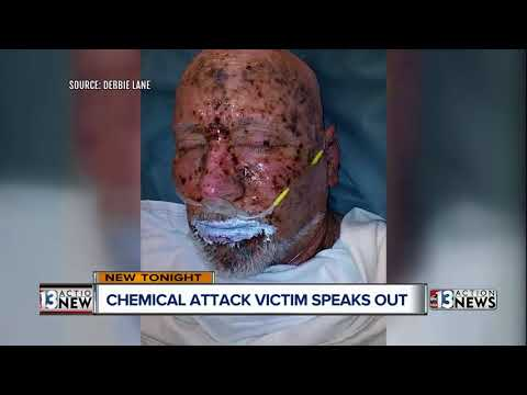 Chemical attack victim speaks to 13 Action News
