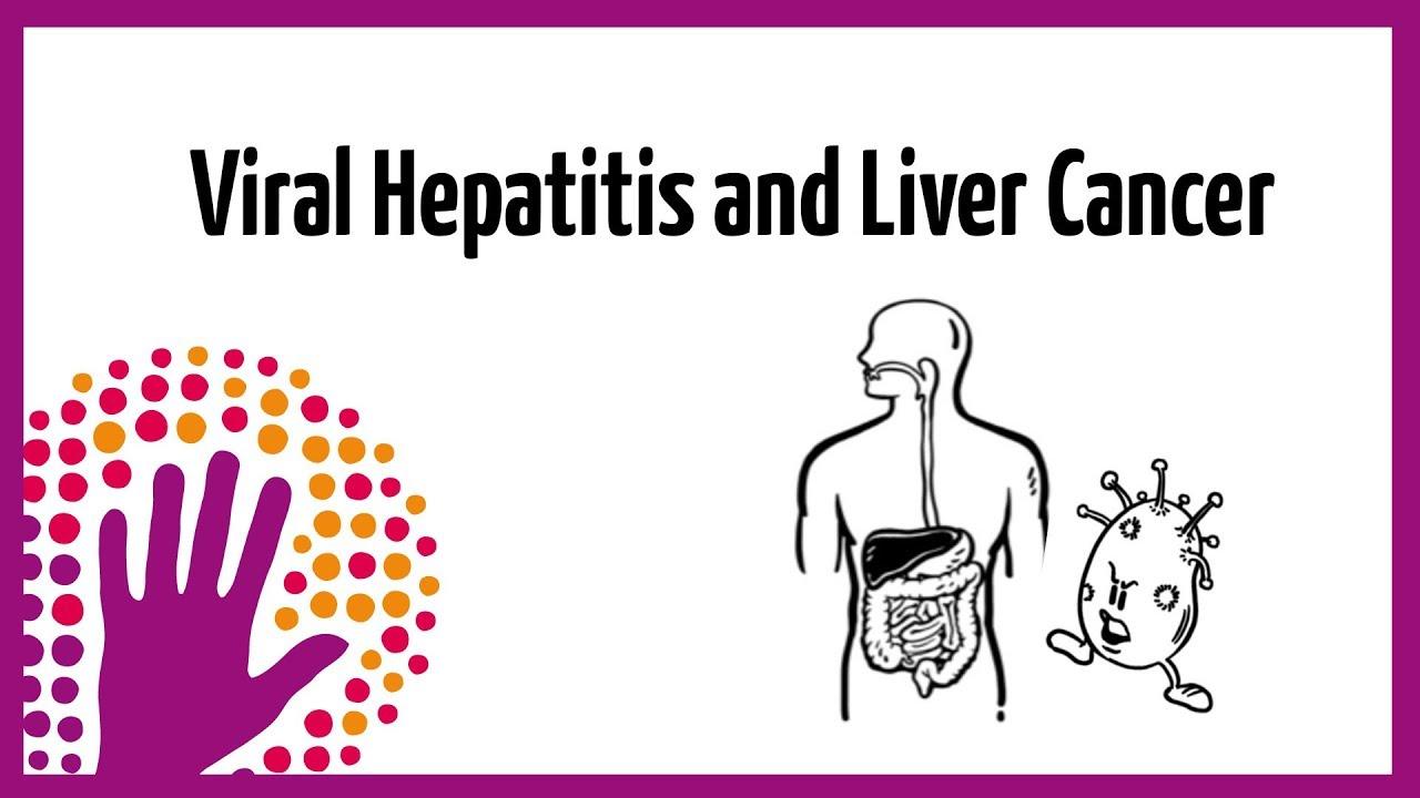 hepatic cancer and hepatitis)