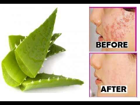 remove-acne-and-pimples-overnight-|-aloe-vera-and-toothpaste-beauty-hacks