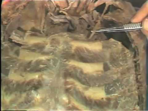 Dissection: Thorax; Pleura and Superior Mediastinum
