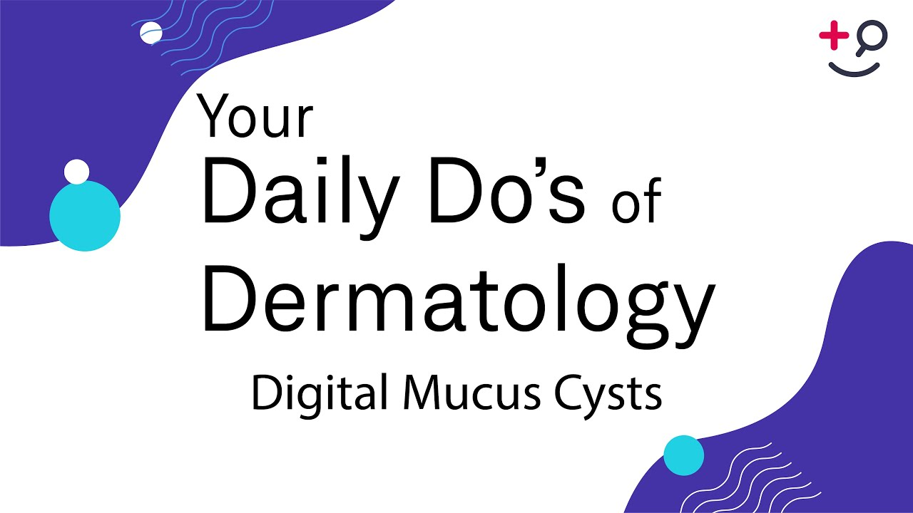Digital Mucous Cyst - American Osteopathic College of
