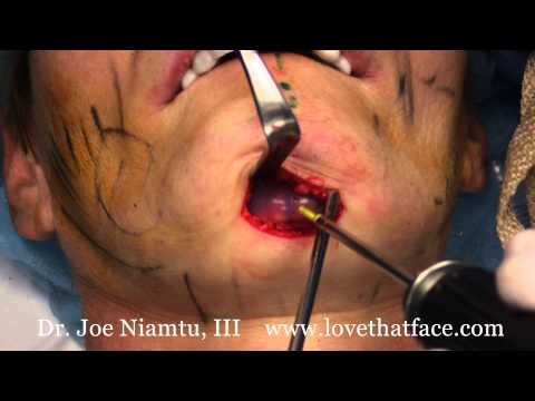Silicone Chin Implants Made Easy: Submental Approach (under the chin) by Dr. Joe Niamtu, III