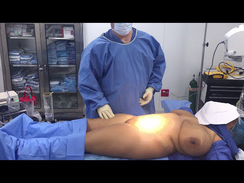 Liposuction of Inner Thighs, Abdomen with Dr. Kenneth Hughes, Los Angeles Plastic Surgeon