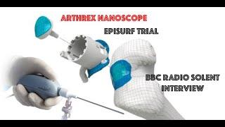 EpiSurf Trial & Arthrex NanoScope Interview  BBC Radio Solent