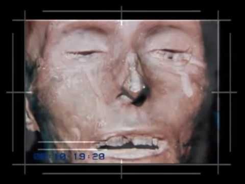 Autopsie Mysteriöse Todesfälle
