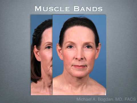 Neck Lift Surgery - Costs, Results, Risks, Recovery