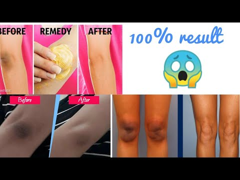 #Whiten you dark Elbows & knees |#How to clean Elbow &knees at home|#dark knees before after