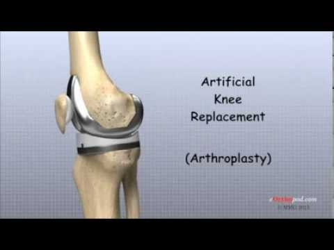 Artificial Knee Replacement