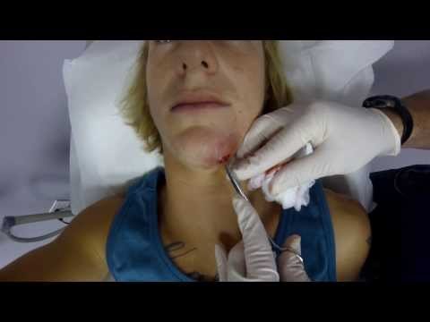 Стафилококк кожный — симптомы и лечение стафилококка