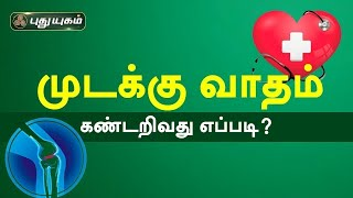 Doctor On Call 18-01-2021 Puthuyugam Tv