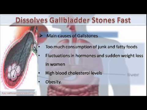 How To Get Rid Of Gallbladder Stones Naturally