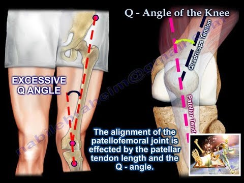 Q Angle Of The Knee Everything You Need To Know Dr. Nabil Ebraheim