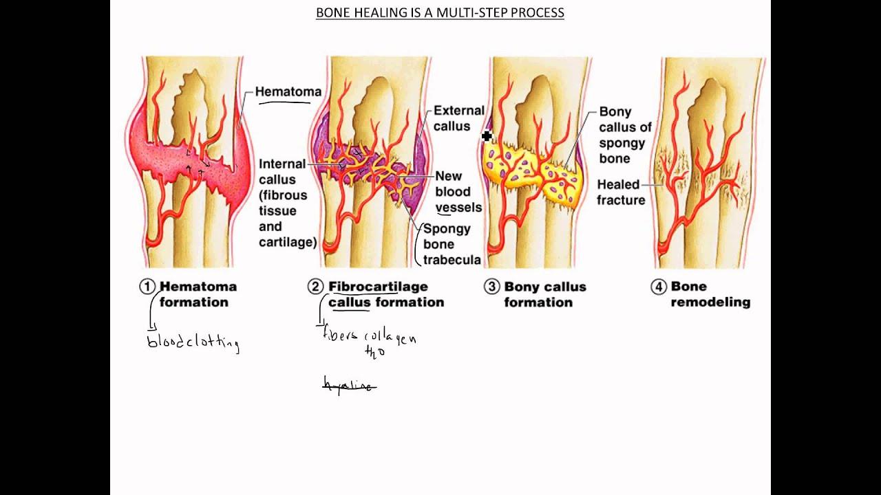 Bone Repair & Healing - YouTube