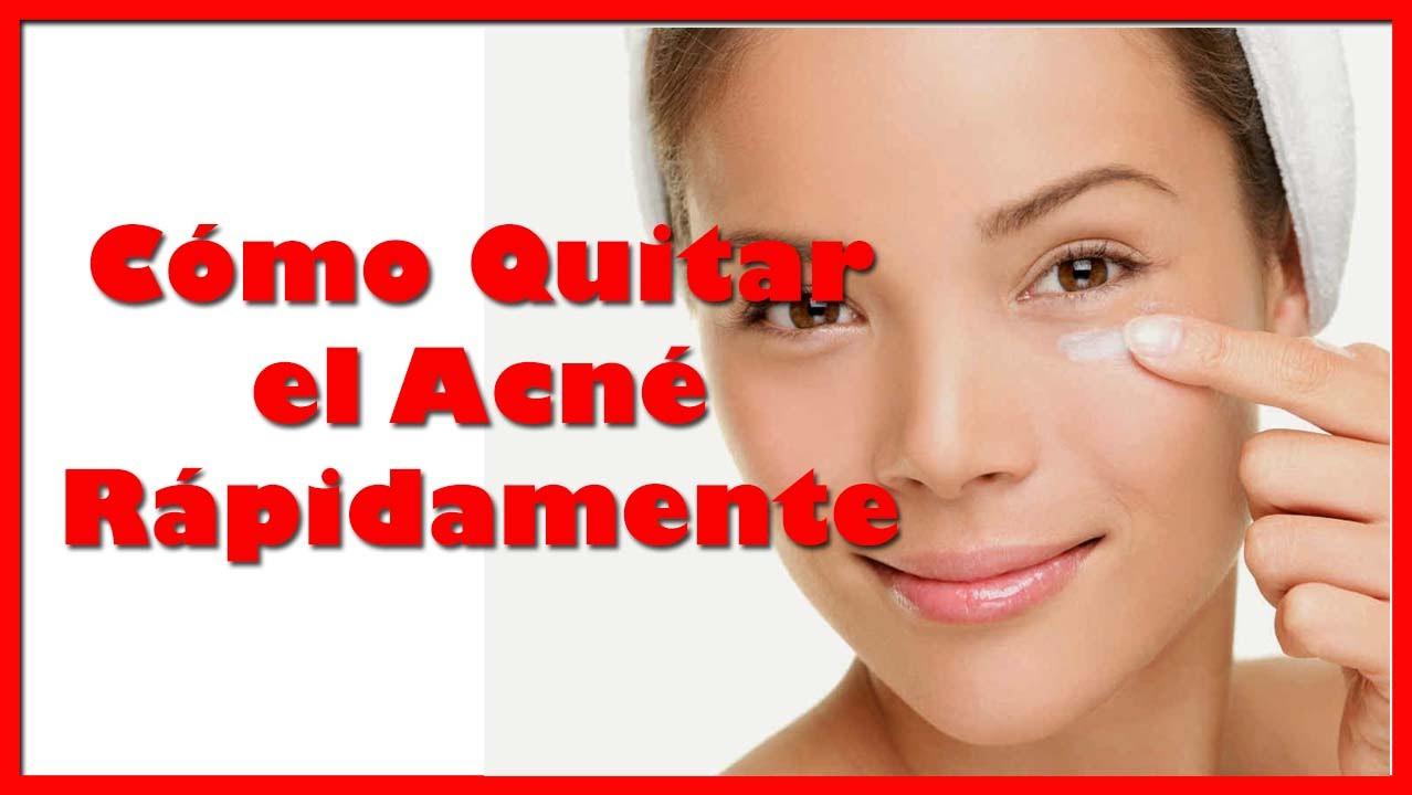 Como quitar el acne rapidamente remedios caseros para el - Como sacar las manchas ...