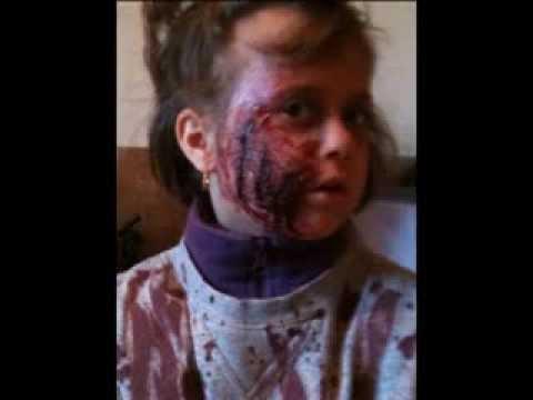 Halloween fausse blessure sans latex comment pater vos amis petits pr - Fausse cicatrice maison ...