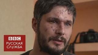 Британец, раненый в Авдеевке   Я стал проверять, есть ли у меня руки и ноги