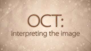 OCT: Interpreting the image