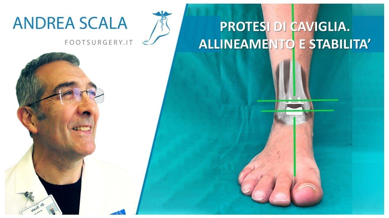 Protesi Di Caviglia  Allineamento E Stabilita U0026 39  Dott  Andrea Scala