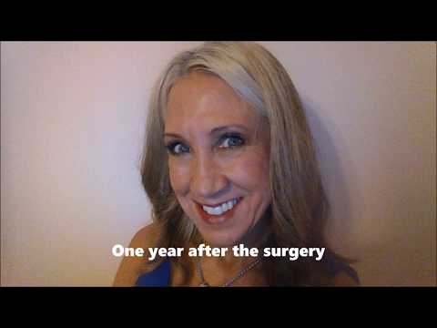 Mohs Surgery On My Nose May Part One