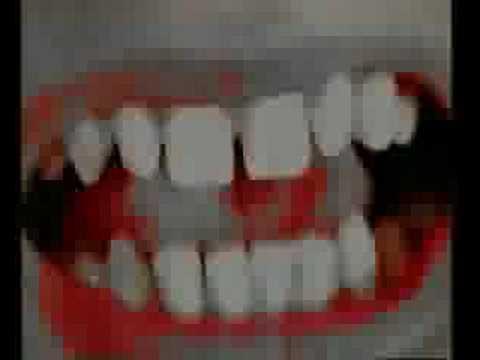 Sweetheart  Life Among Cannibals music video