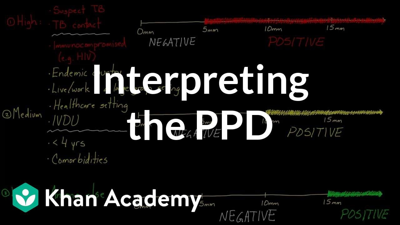 Interpreting the PPD | Infectious diseases | NCLEX-RN | Khan Academy