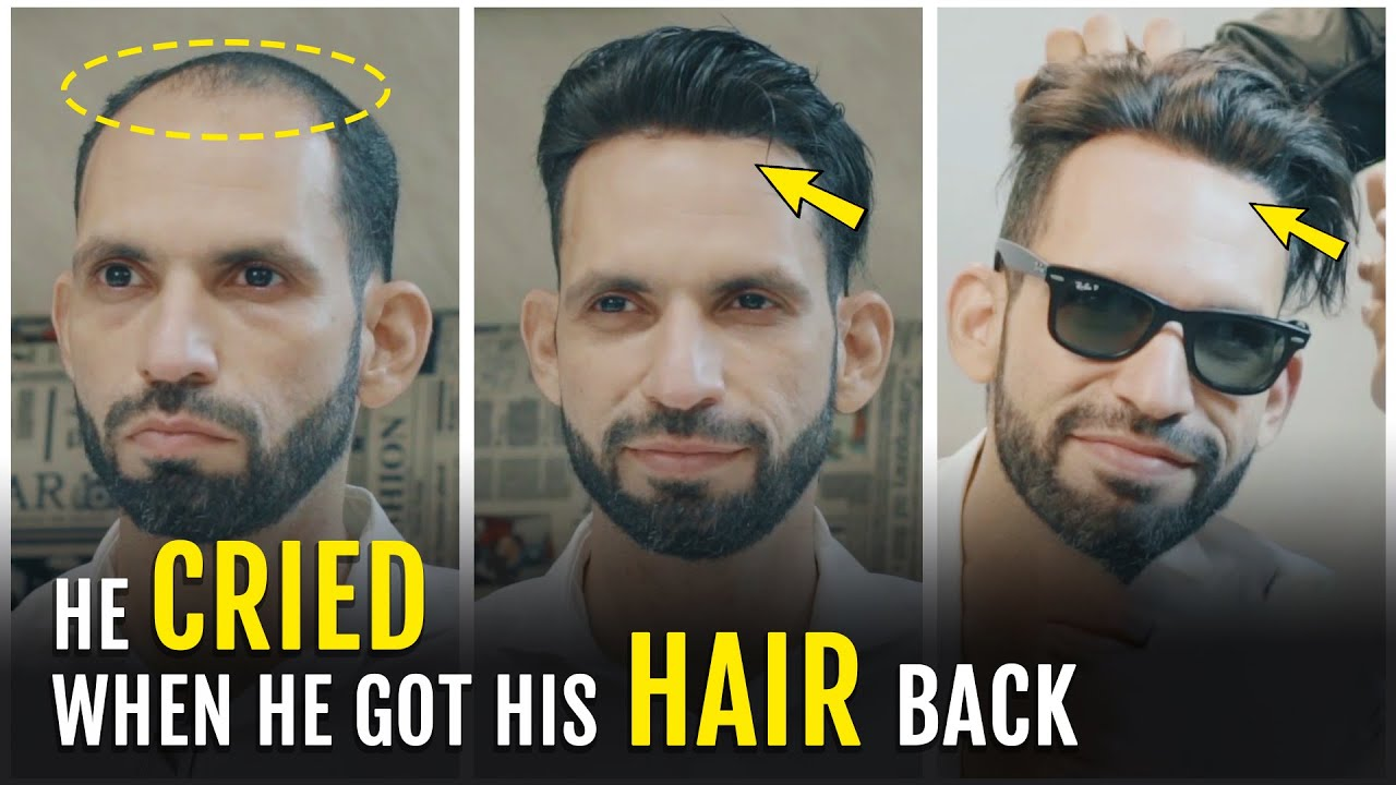 Glue/Tape Hair Patch For Men in India | Customized Hair Replacement Systems/Wigs