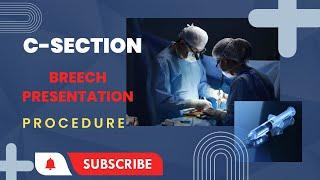 C-section Procedure ( Breech Baby )