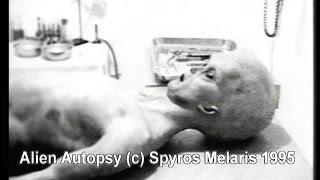 The Alien Autopsy