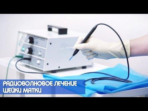 Радиоволновое лечение шейки матки на аппарате