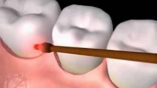 видео Лазерная стоматология youtube