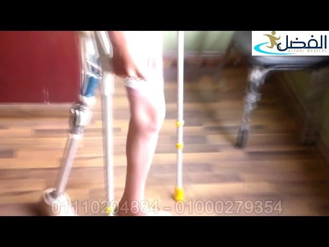 اطراف صناعية - طرف من مفصل الحوض ركبة متحركة الماني لأول مرة - الفضل ميديكال