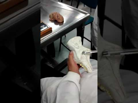 SISTEMA NERVIOSO- BULBO RAQUIDEO- DR JURADO ANATOMIA - YouTube