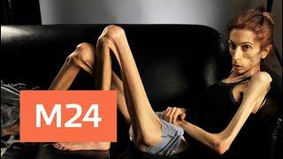 """""""Прямо и сейчас"""": как вовремя выявить начало анорексии - Москва 24"""