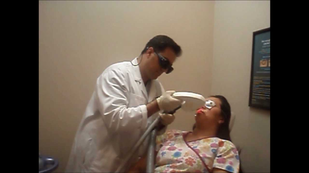 Laser Hair Removal Demonstration 1 - A E Skin - Encino CA ...