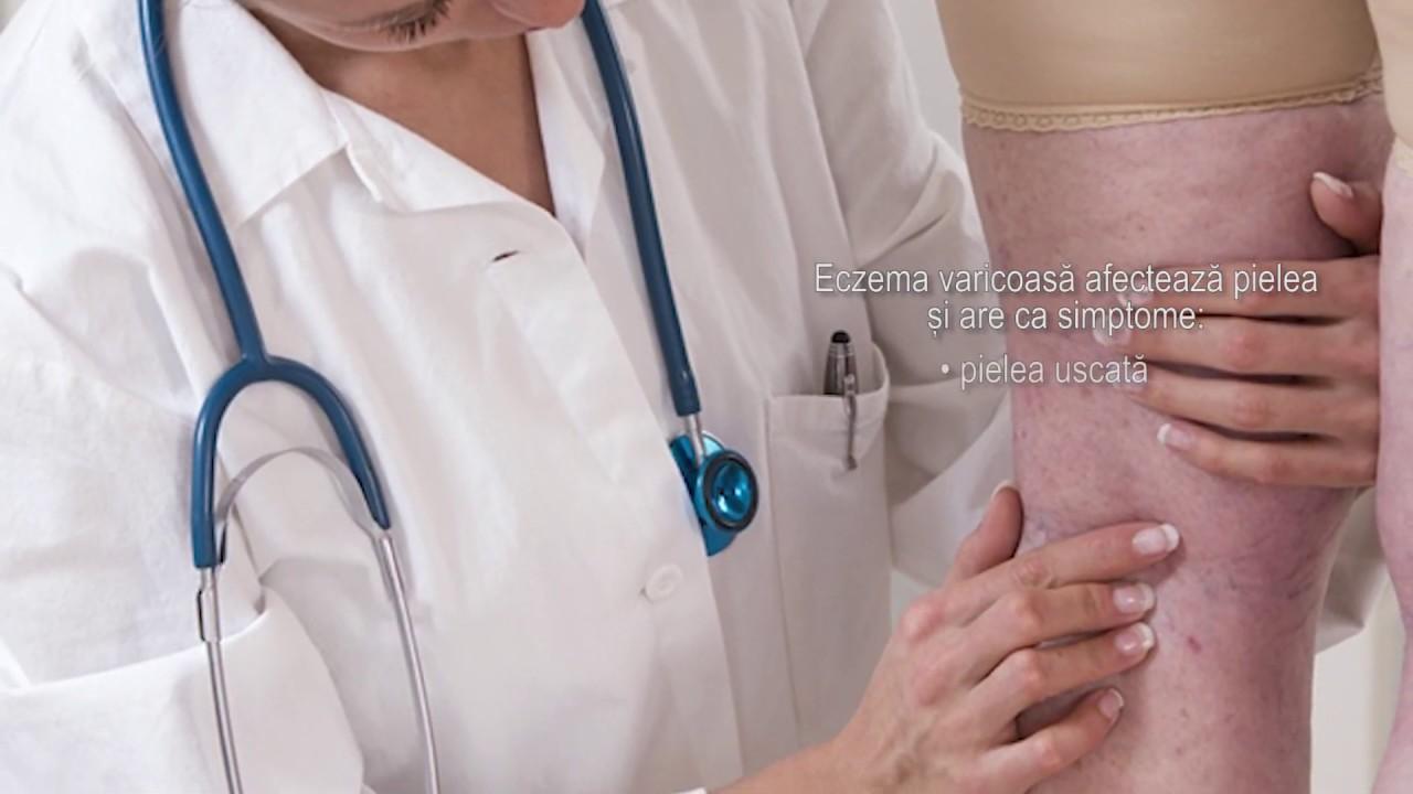 prevenirea varicoasă a trombozei