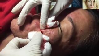ADAMIN YÜZÜNDEKİ SİYAH NOKTALAR.Sivilce Sıkma.Blackheads Removal.Acne treatment..
