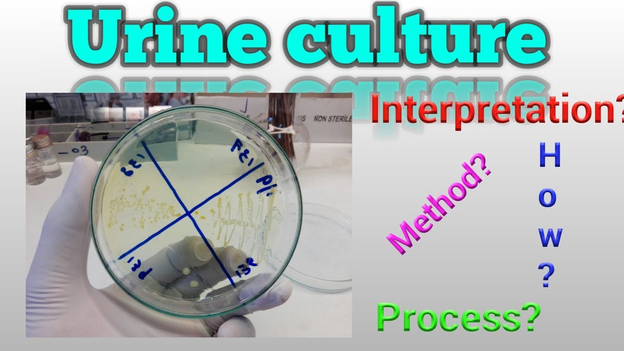 maxresdefault - How Long Does It Take To Get Urine Culture Results