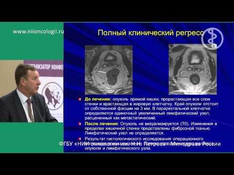 Рак прямой кишки: первые симптомы и фото
