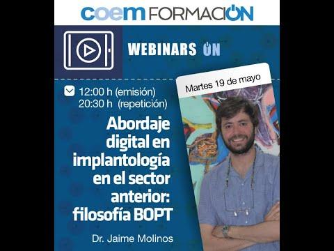 Abordaje Digital En Implantología En El Sector Anterior: Filosofía BOPT