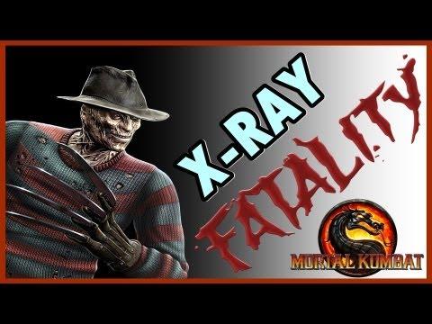 Mortal Kombat 9 Komplete Edition ( PS3 ) : Freddy Krueger  ( Fatalities + X-RAY )