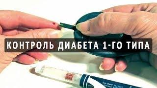 Контроль сахарного диабета 1 типа