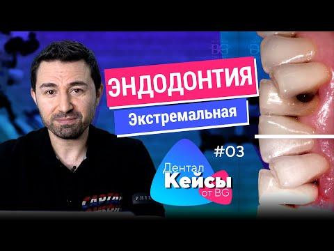 Экстремальная эндодонтия и сложная реставрация. Дентал Кейсы от BG. #03