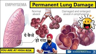 What is Emphysema | Permanent Lung Damage | Dr.Education Hindi Eng