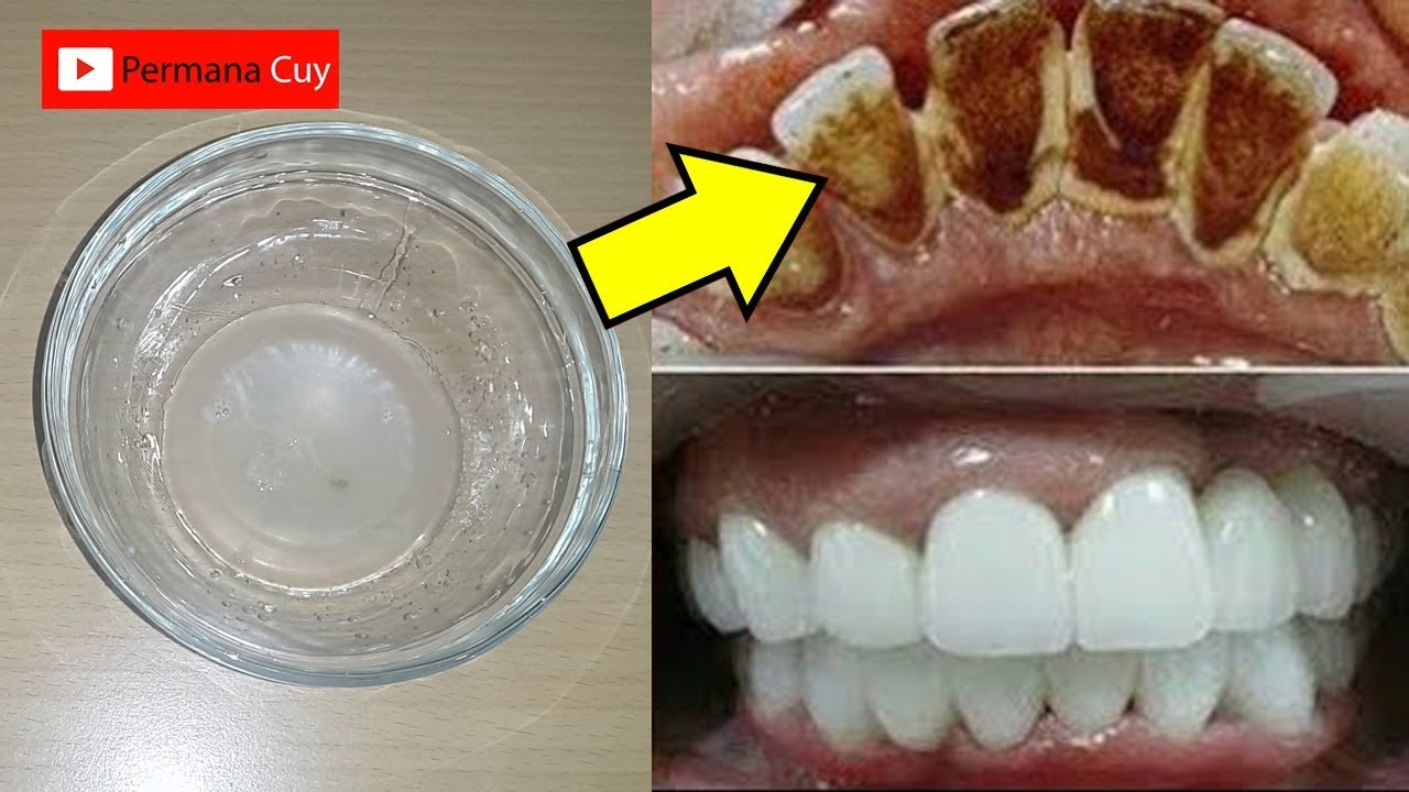 Hanya 2 Menit Membuat Gigi Kuning Menjadi Putih Kembali Pemutihan
