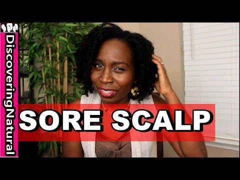 Can Hair Growth Cause Sore Scalp