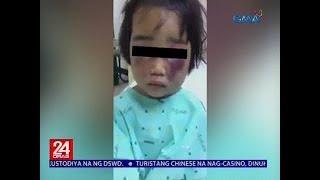 24 Oras: 3-anyos na bata, binugbog umano ng kanyang madrasta