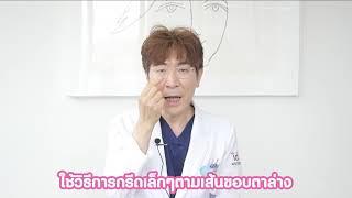 [DOCTOR EXPERT] คุณหมอ จางอูซอก แนะนำเทคนิคศัลยรรมยกกระชับ lโรงพยาบาลศัลยกรรมไอดี